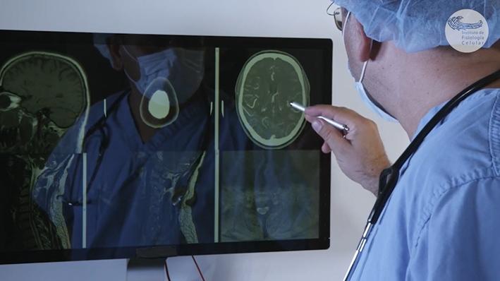 Nuevos caminos para entender la epilepsia: UNAM